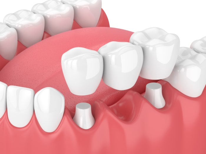 What is Dental Bridges