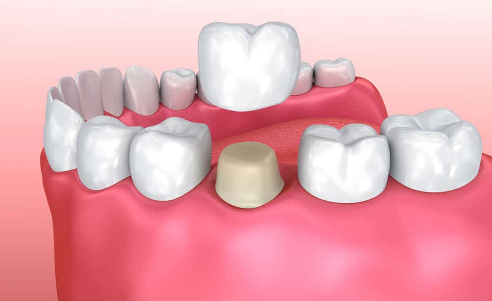 What is Dental Crowns